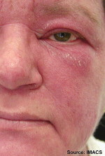 Lupus Awareness Month – Your friend – Malar Rash